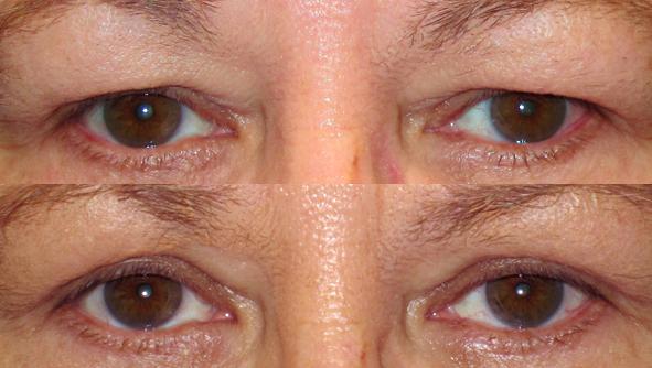 Eyelid Rejuvenation | Eyelid Surgery | Fort Lauderdale Eye