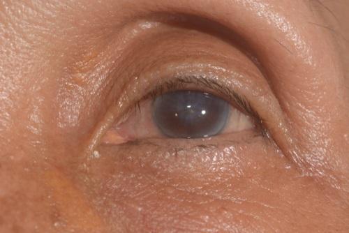 infiltrado corneal emedicina diabetes