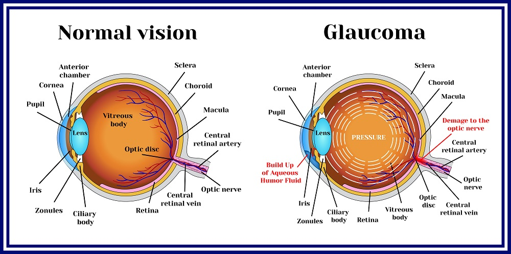 what are the symptoms of narrow angle glaucoma? fort lauderdale Retinal Detachment Diagram